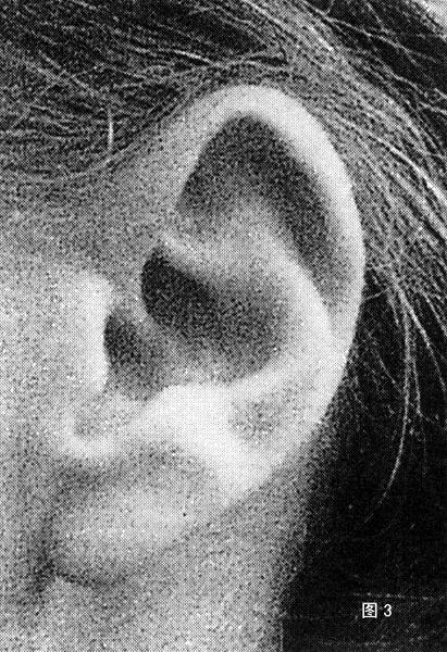 七下生物耳朵结构图